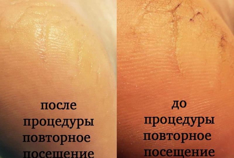 Маникюр и педикюр-3